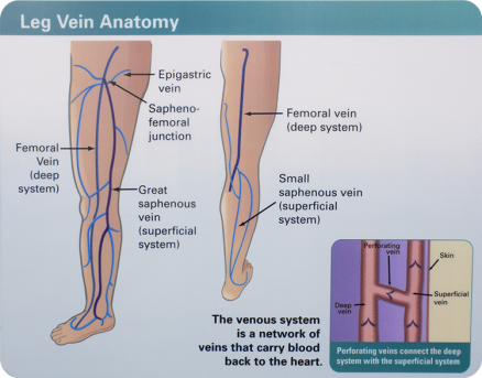 Varicose Veins | Vein Treatment Pittsburgh PA | Sewickley