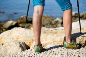 Varicose Veins Treatment Pittsburgh PA | Sewickley, PA